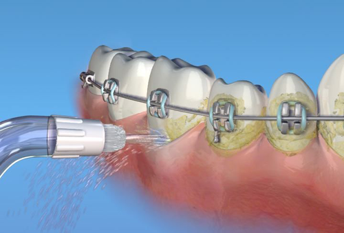 braces-and-smiles-waterpik.png